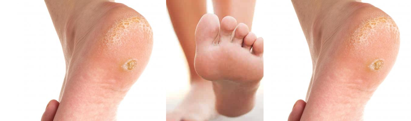 Warts Treatments By Podiatrists In Chicago European Foot Ankle Clinic